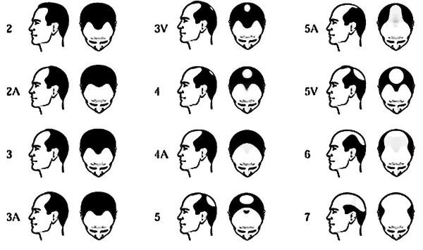 mot håravfall män
